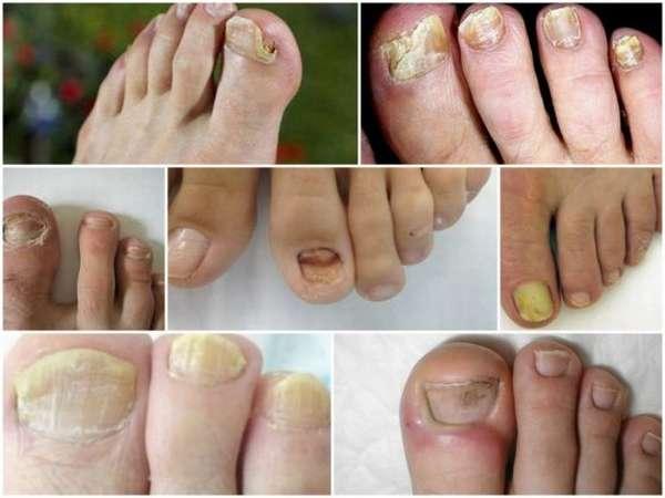 грибок на ногтях фото