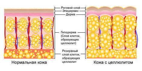 образование между клетками жира ячеистых перемычек волокон коллагена.