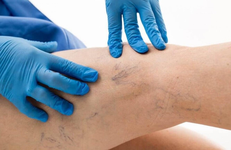 Что нужно знать о тромбофлебите, чтобы его вовремя лечить