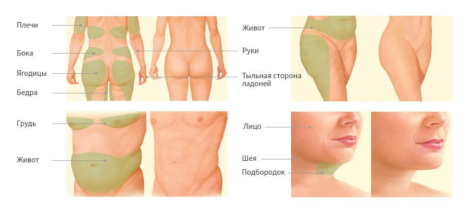 Уколы липолитиков для похудения